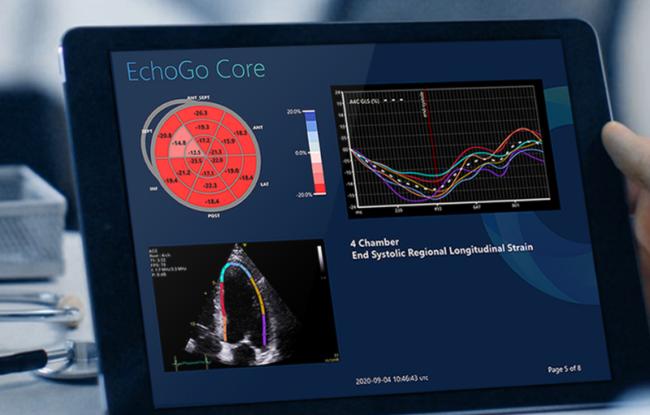 Cardiovascular Imaging Company Ultromics Raises $33 Million